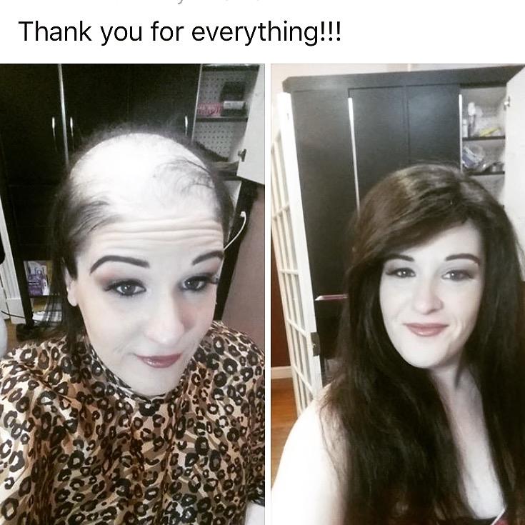 Hair loss in Women - Mega Hair Elite - Susan